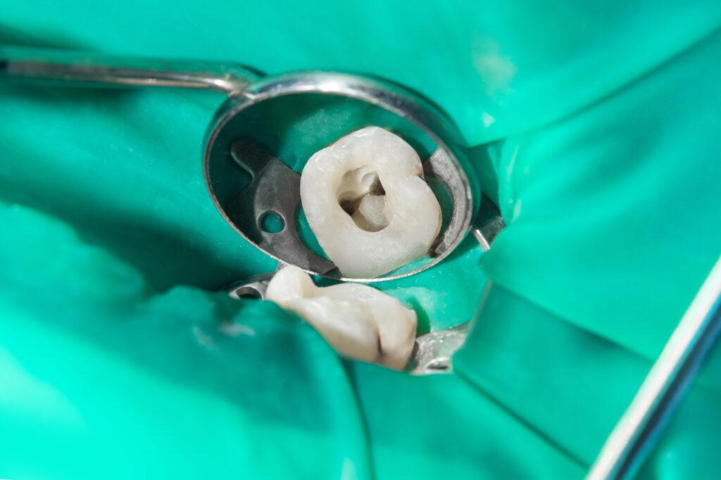 Zahnschmerzen und Wurzelbehandlung